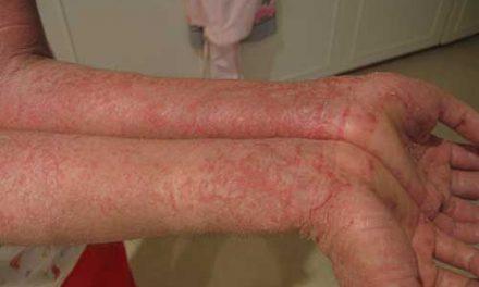 Quelle est la différence entre l'eczéma et la dermatite atopique