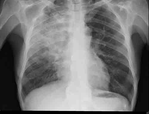 Quelle est la différence entre la pneumonie et la pneumonie atypique