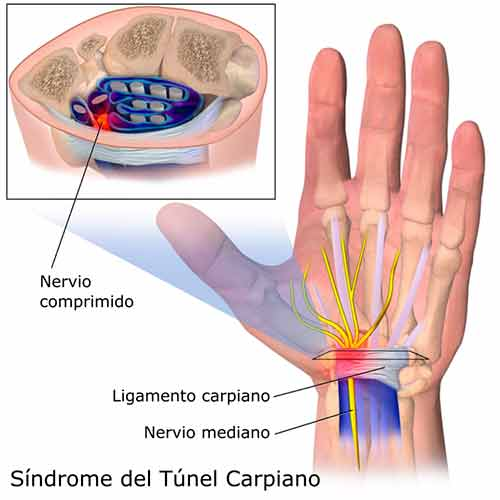 Túnel Carpiano