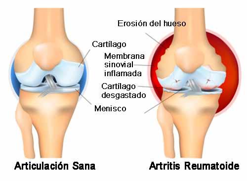Quelle est la difference entre arthritis et canal carpien