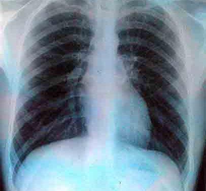 Quelle est la difference entre bronchite chronique et emphysème