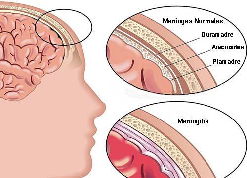 Quelle est la difference entre la méningite bactérienne et virale