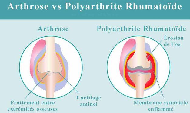 Quelle est la différence entre l'arthrose et la polyarthrite rhumatoïde