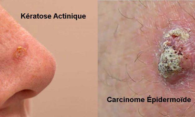 Quelle est la différence entre la kératose actinique et le carcinome épidermoïde